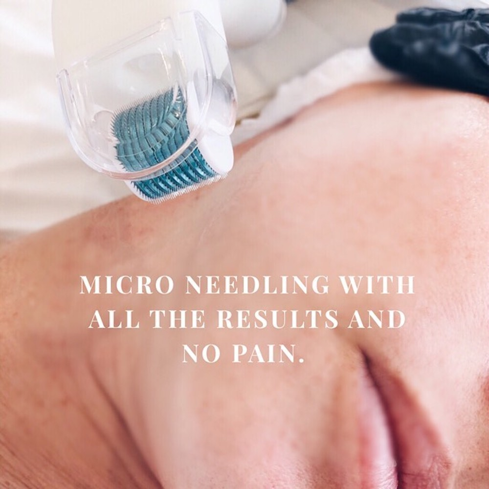 Microneedling at Amy Gordon